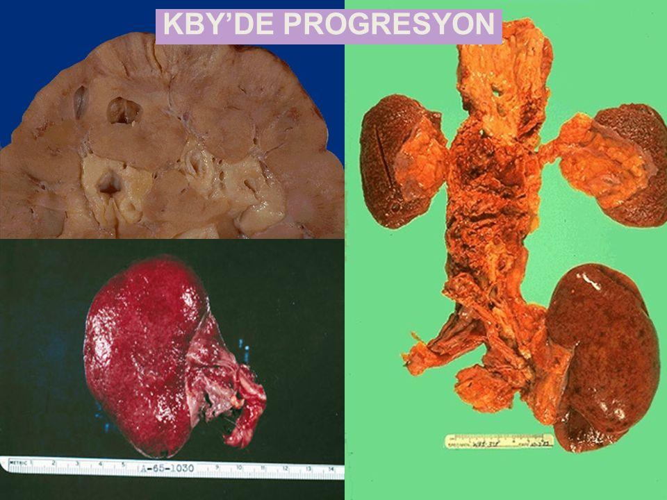 KBY'DE PROGRESYON