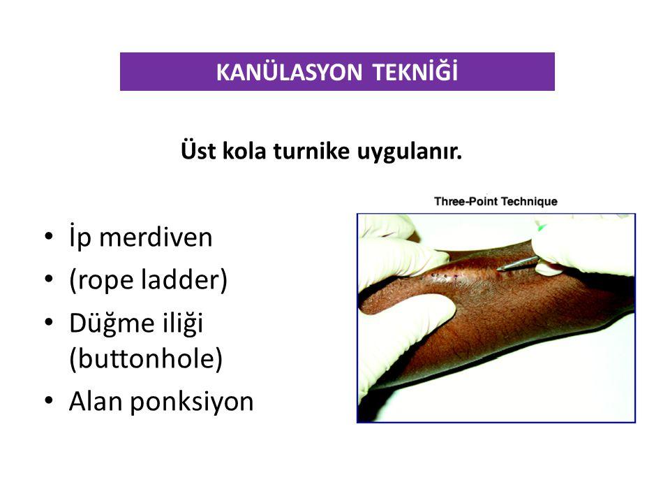 KANÜLASYON TEKNİĞİ Üst kola turnike uygulanır. • İp merdiven • (rope ladder) • Düğme iliği (buttonhole) • Alan ponksiyon