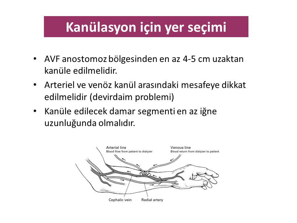 • AVF anostomoz bölgesinden en az 4-5 cm uzaktan kanüle edilmelidir. • Arteriel ve venöz kanül arasındaki mesafeye dikkat edilmelidir (devirdaim probl