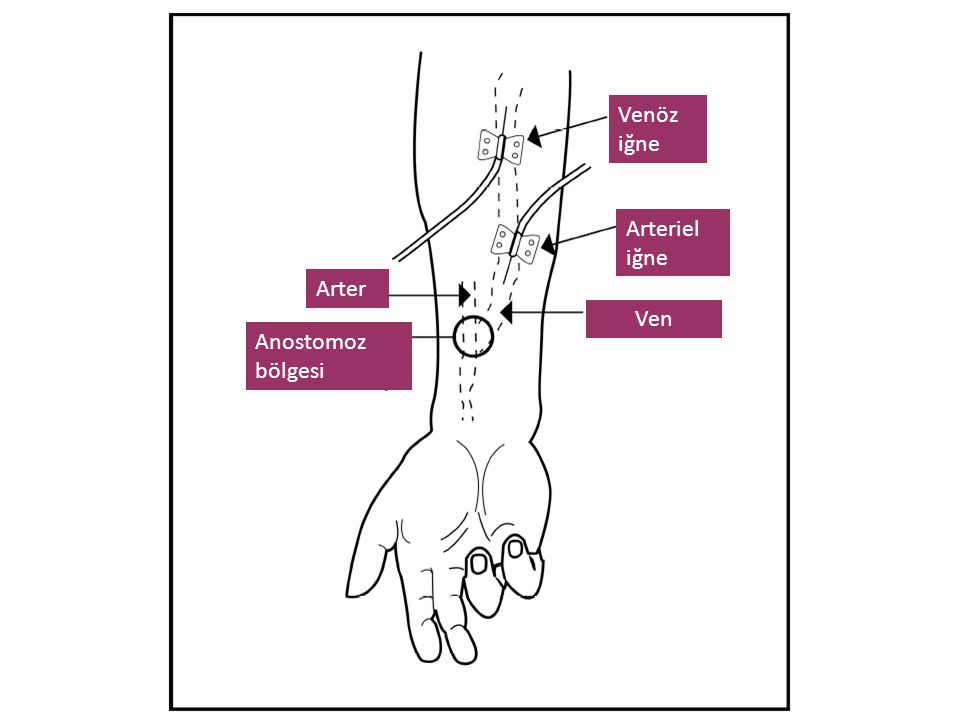 Arter Anostomoz bölgesi Ven Arteriel iğne Venöz iğne