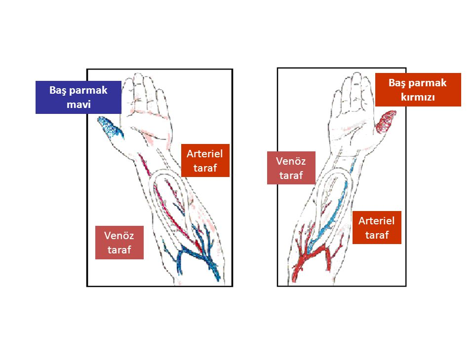 Baş parmak kırmızı Baş parmak mavi Venöz taraf Arteriel taraf Venöz taraf