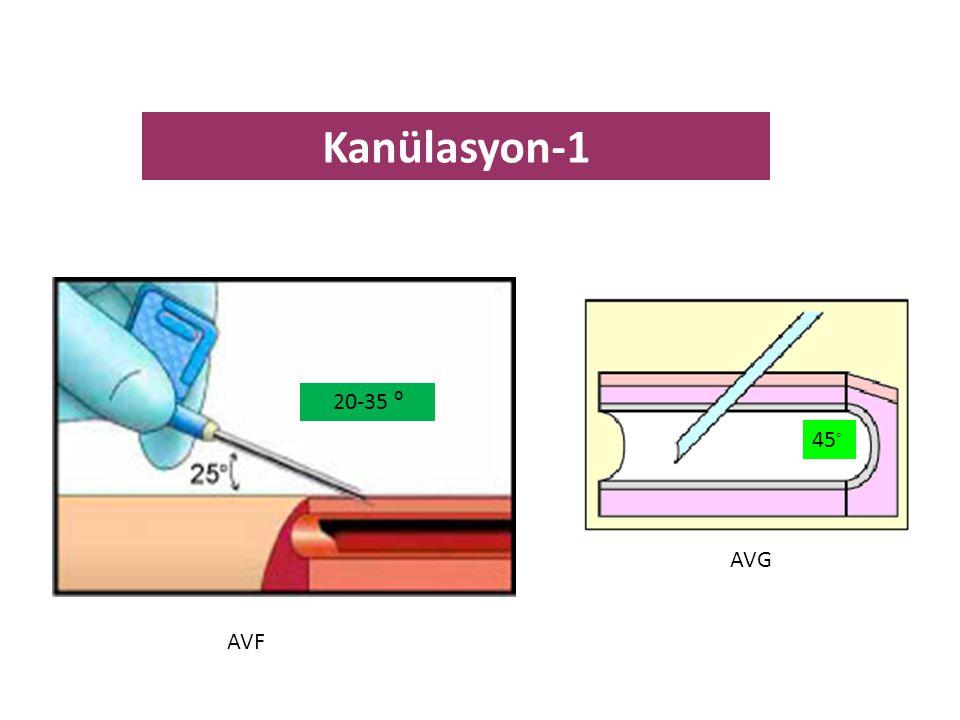 45 ◦ AVG AVF Kanülasyon-1 20-35 ⁰
