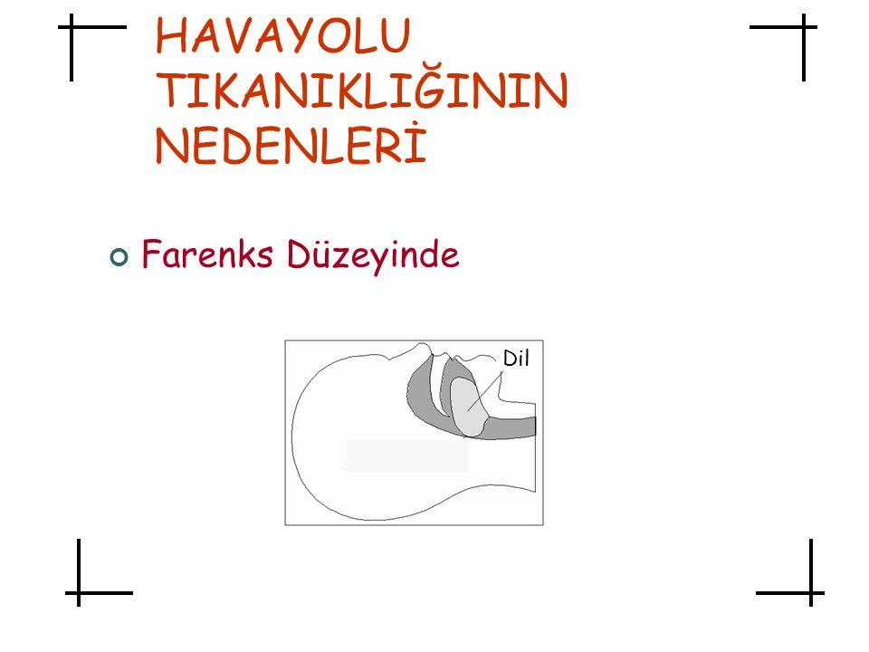 HAVAYOLU TIKANIKLIĞININ NEDENLERİ Farenks Düzeyinde Dil