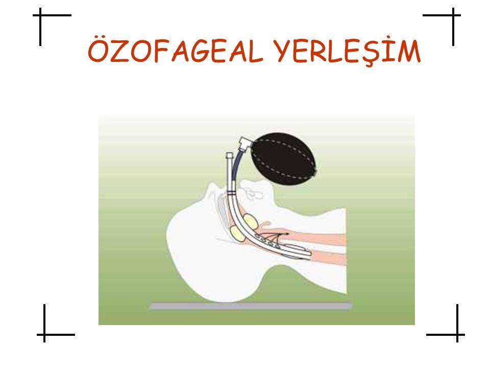 ÖZOFAGEAL YERLEŞİM