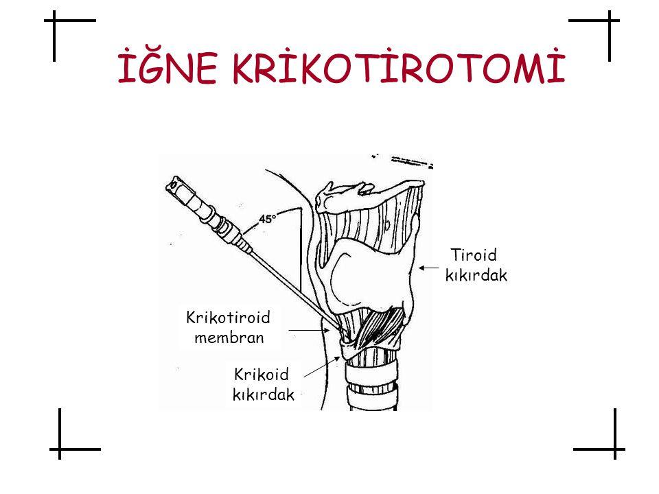 İĞNE KRİKOTİROTOMİ Tiroid kıkırdak Krikoid kıkırdak Krikotiroid membran