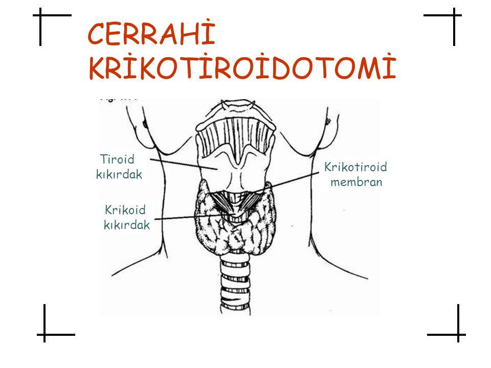 Tiroid kıkırdak Krikoid kıkırdak Krikotiroid membran