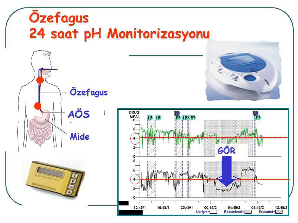 Özefagus 24 saat pH Monitorizasyonu Özefagus AÖS Mide GÖR