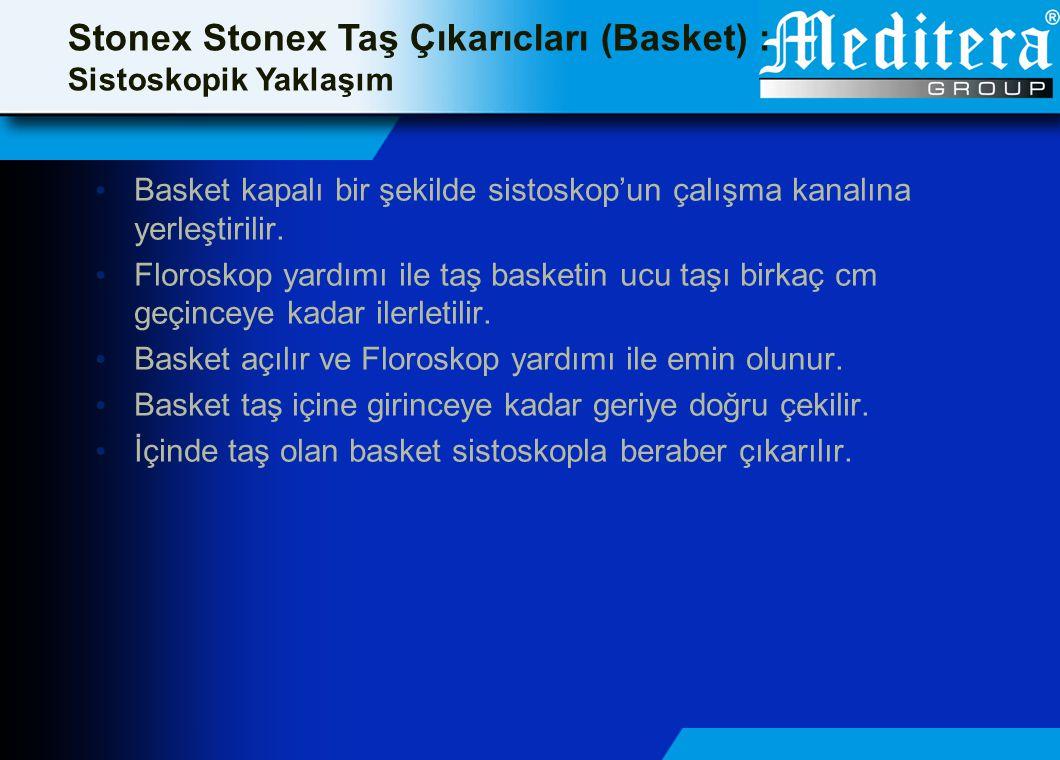 Stonex Stonex Taş Çıkarıcları (Basket) : Sistoskopik Yaklaşım • Basket kapalı bir şekilde sistoskop'un çalışma kanalına yerleştirilir. • Floroskop yar