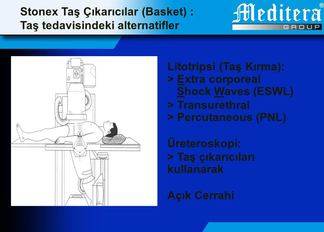 Stonex Taş Çıkarıcılar (Basket) : Üreter Taşlarının Tedavisi Üst Üreter: > ESWL > PCN + ESWL Orta Üreter: > ESWL > Antegrade URS Alt Üreter: > Retrograde URS > Transüretral litotripsi