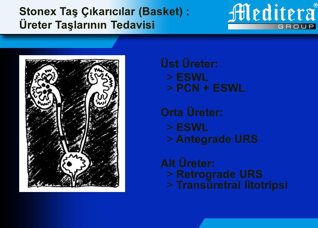 Stonex Taş Çıkarıcılar (Basket) : Üreter Taşlarının Tedavisi Üst Üreter: > ESWL > PCN + ESWL Orta Üreter: > ESWL > Antegrade URS Alt Üreter: > Retrogr
