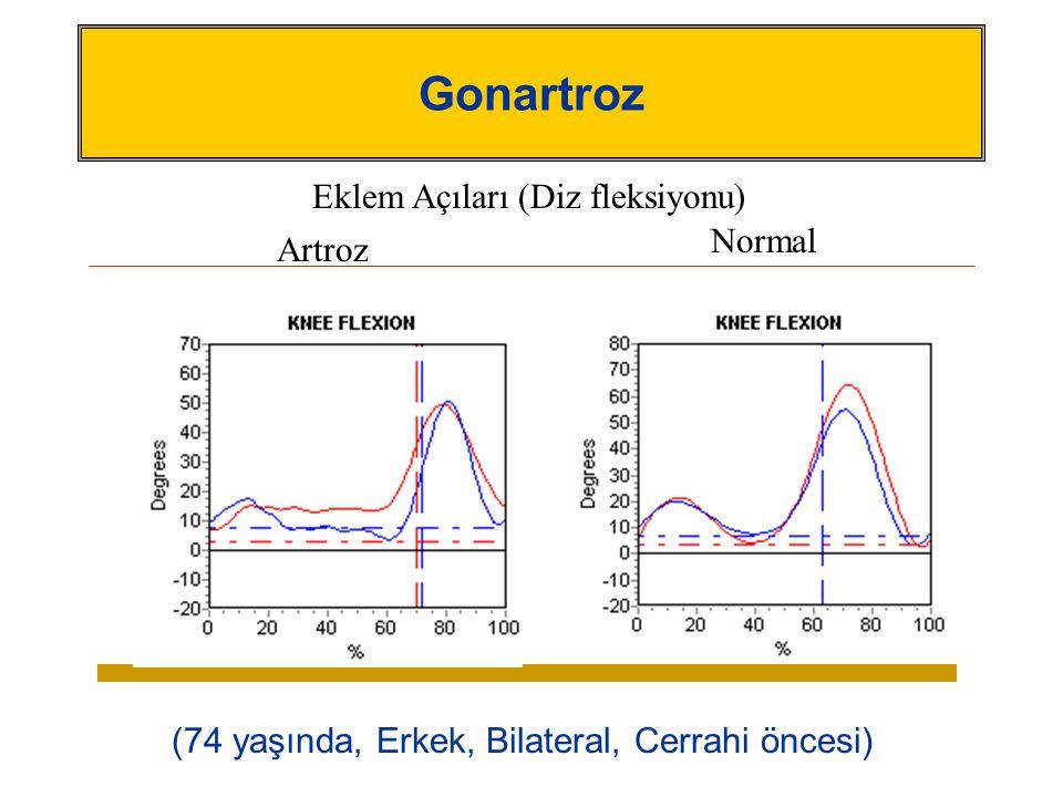 Gonartroz (74 yaşında, Erkek, Bilateral, Cerrahi öncesi) Artroz Normal Eklem Açıları (Diz fleksiyonu)