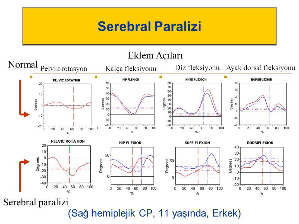 Serebral Paralizi (Sağ hemiplejik CP, 11 yaşında, Erkek) Serebral paralizi Normal Eklem Açıları Pelvik rotasyonKalça fleksiyonu Diz fleksiyonuAyak dor