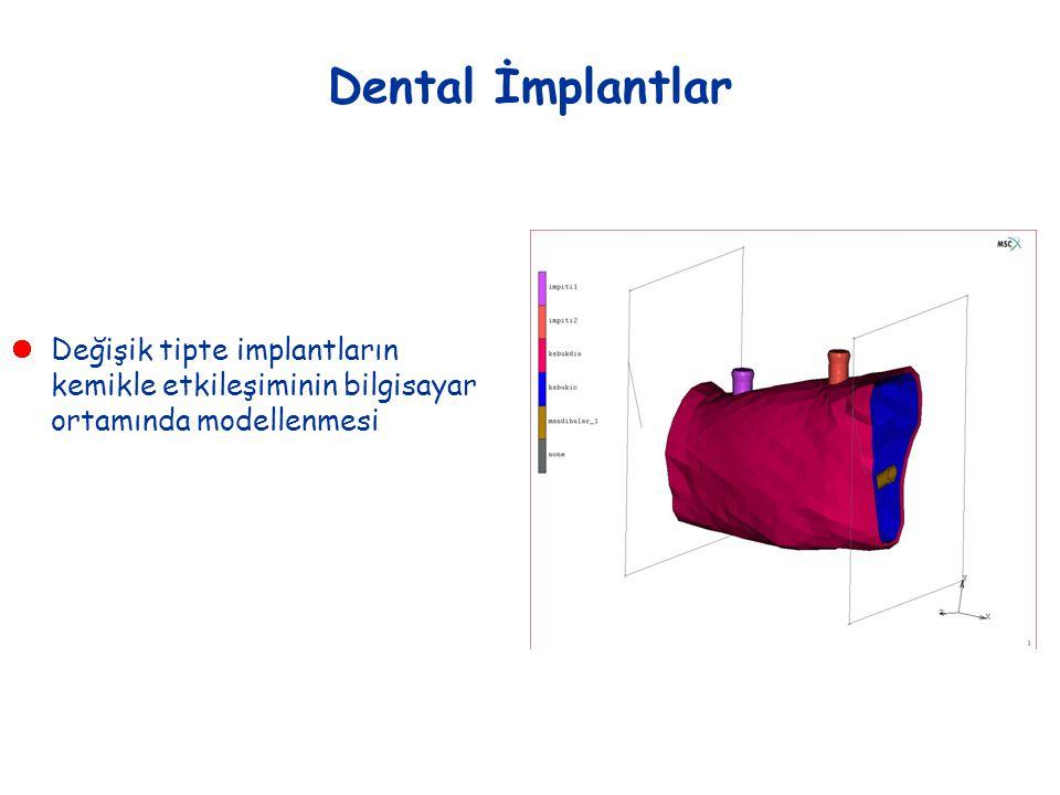 Dental İmplantlar  Değişik tipte implantların kemikle etkileşiminin bilgisayar ortamında modellenmesi
