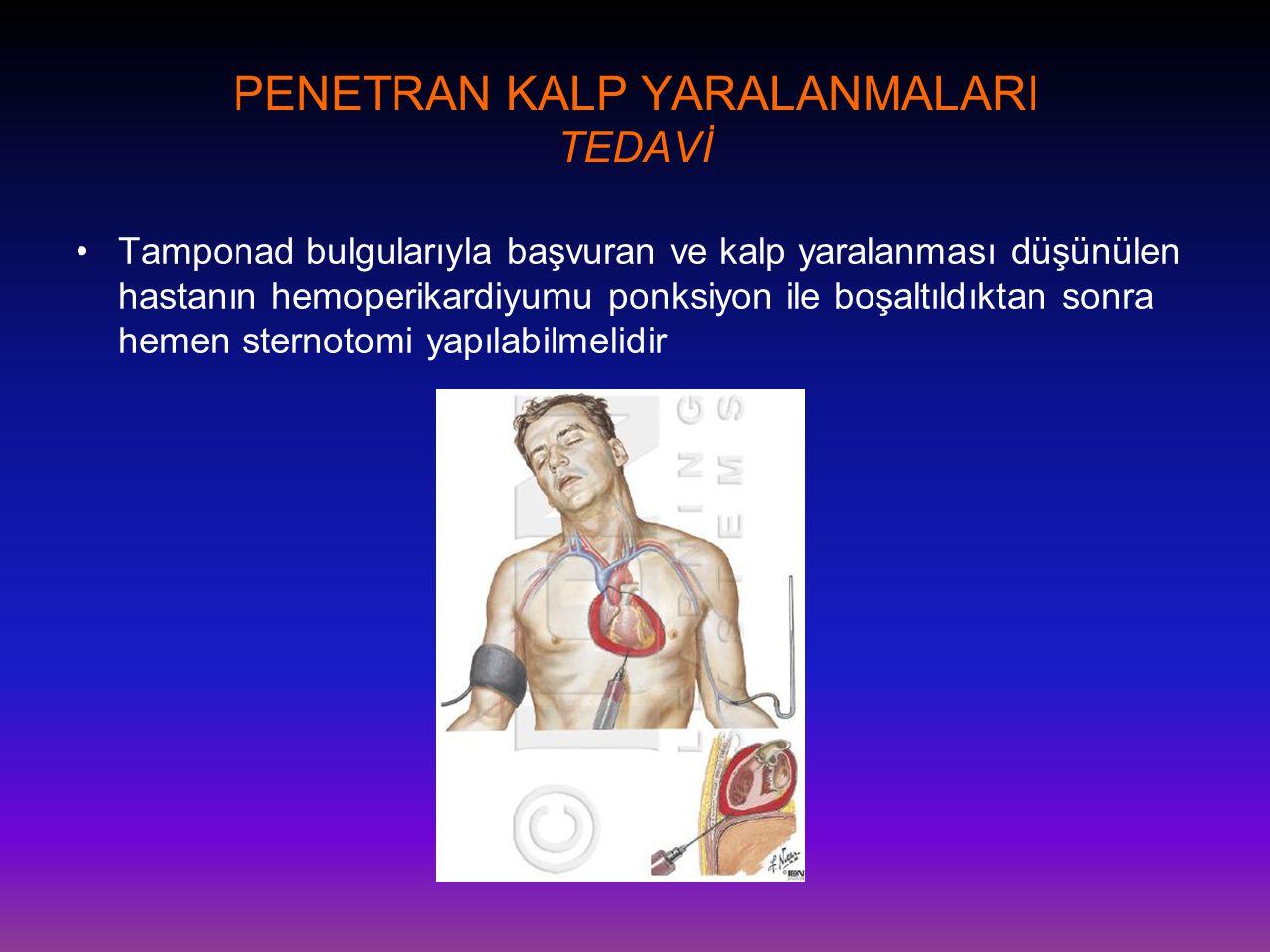 PENETRAN KALP YARALANMALARI TEDAVİ •Tamponad bulgularıyla başvuran ve kalp yaralanması düşünülen hastanın hemoperikardiyumu ponksiyon ile boşaltıldıkt