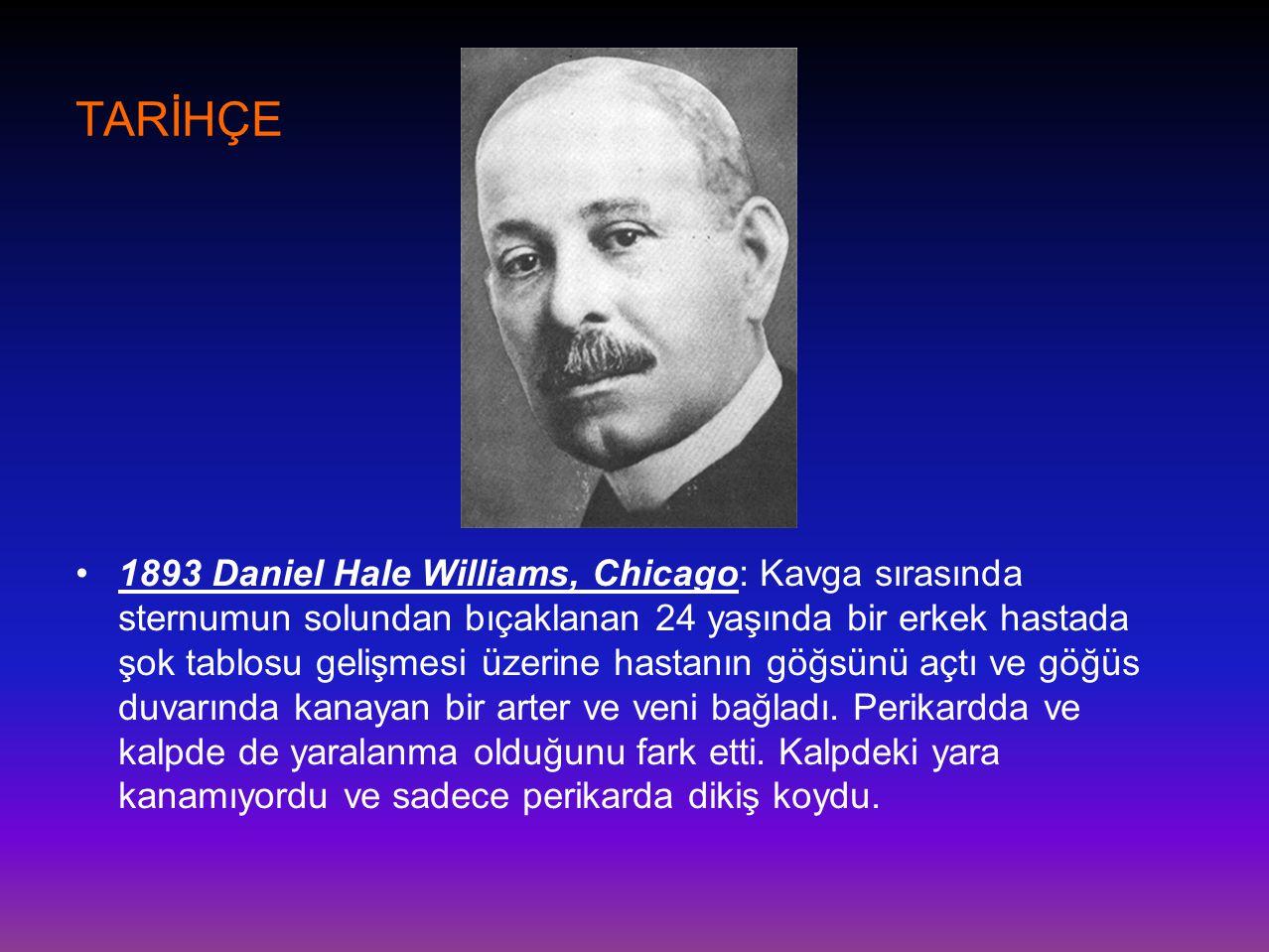 TARİHÇE •1893 Daniel Hale Williams, Chicago: Kavga sırasında sternumun solundan bıçaklanan 24 yaşında bir erkek hastada şok tablosu gelişmesi üzerine
