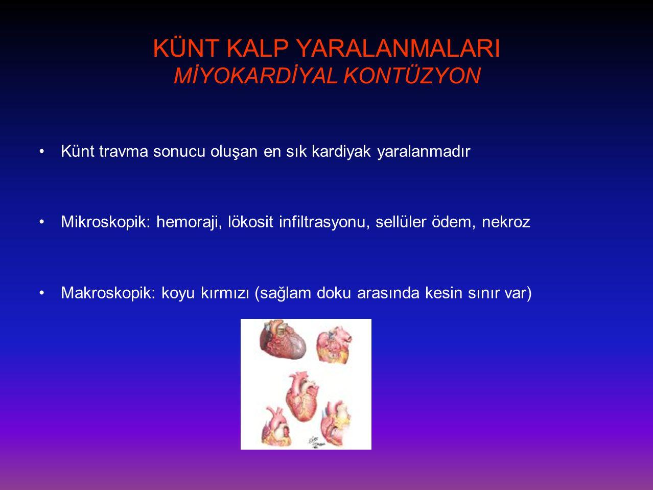 KÜNT KALP YARALANMALARI MİYOKARDİYAL KONTÜZYON •Künt travma sonucu oluşan en sık kardiyak yaralanmadır •Mikroskopik: hemoraji, lökosit infiltrasyonu,