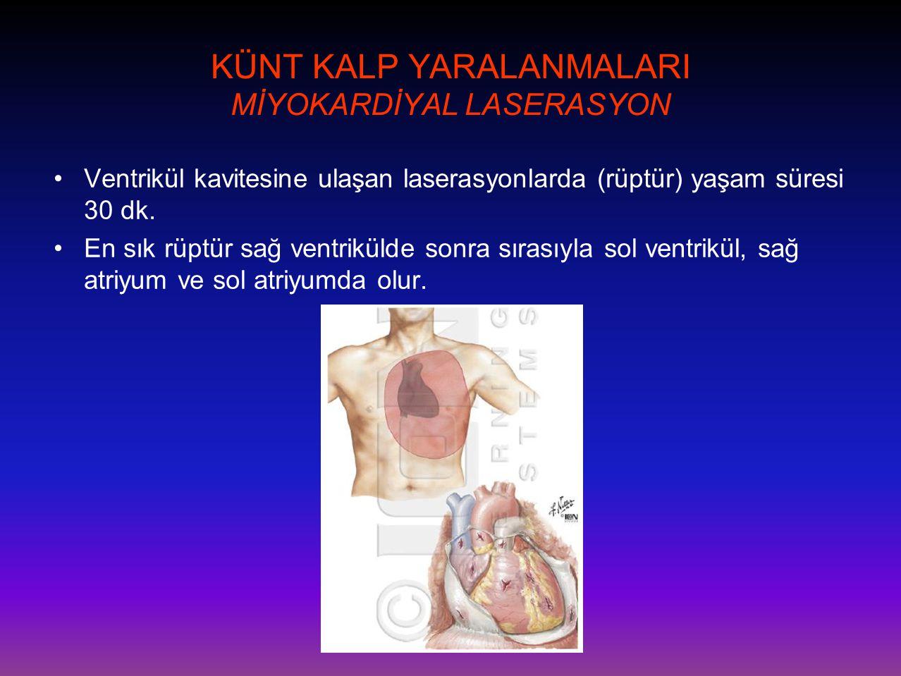KÜNT KALP YARALANMALARI MİYOKARDİYAL LASERASYON •Ventrikül kavitesine ulaşan laserasyonlarda (rüptür) yaşam süresi 30 dk. •En sık rüptür sağ ventrikül
