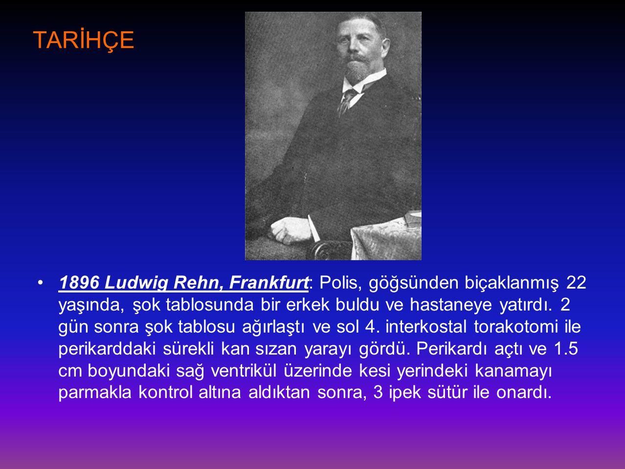 TARİHÇE •1896 Ludwig Rehn, Frankfurt: Polis, göğsünden biçaklanmış 22 yaşında, şok tablosunda bir erkek buldu ve hastaneye yatırdı. 2 gün sonra şok ta