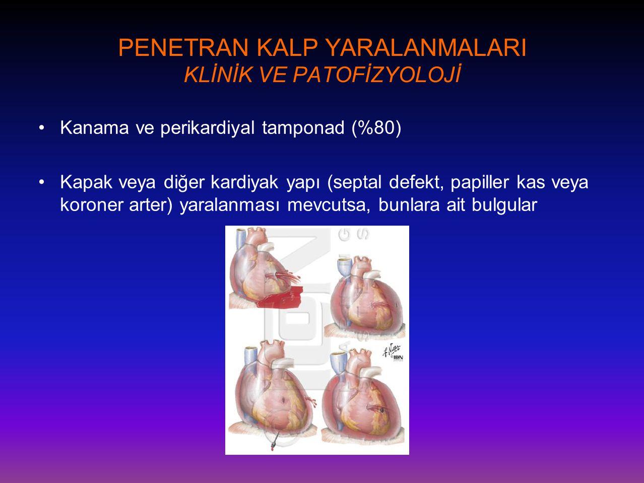 PENETRAN KALP YARALANMALARI KLİNİK VE PATOFİZYOLOJİ •Kanama ve perikardiyal tamponad (%80) •Kapak veya diğer kardiyak yapı (septal defekt, papiller ka