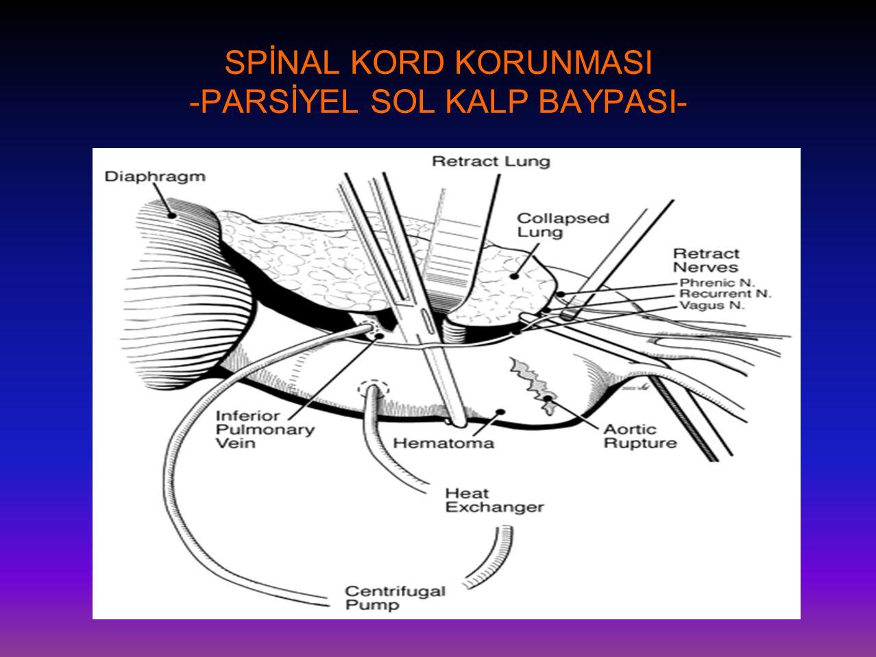 SPİNAL KORD KORUNMASI -PARSİYEL SOL KALP BAYPASI-