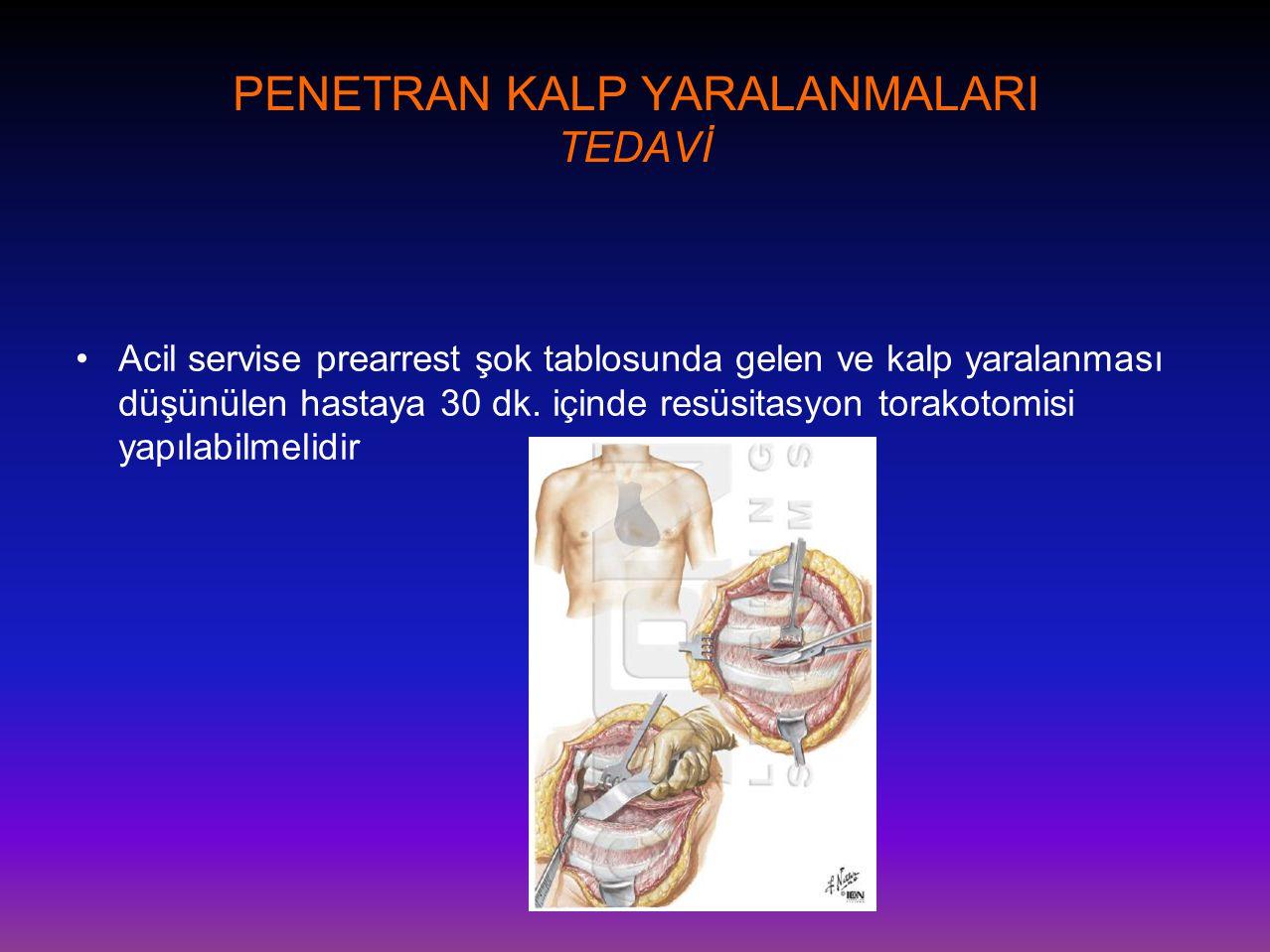 PENETRAN KALP YARALANMALARI TEDAVİ •Acil servise prearrest şok tablosunda gelen ve kalp yaralanması düşünülen hastaya 30 dk. içinde resüsitasyon torak