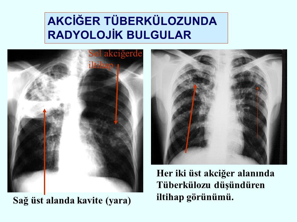 Her iki üst akciğer alanında Tüberkülozu düşündüren iltihap görünümü. Sağ üst alanda kavite (yara) AKCİĞER TÜBERKÜLOZUNDA RADYOLOJİK BULGULAR Sol akci