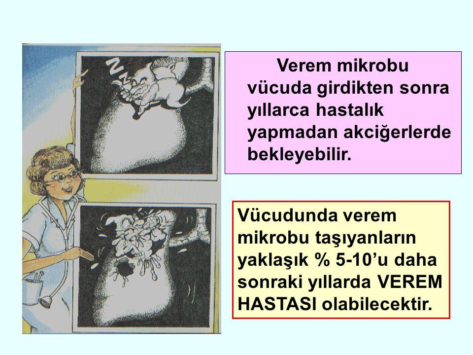 Her iki üst akciğer alanında Tüberkülozu düşündüren iltihap görünümü.