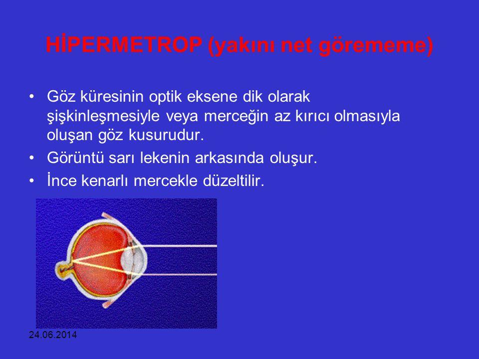 24.06.2014 HİPERMETROP (yakını net görememe) •Göz küresinin optik eksene dik olarak şişkinleşmesiyle veya merceğin az kırıcı olmasıyla oluşan göz kusu