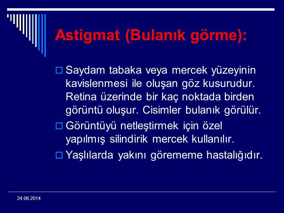 24.06.2014 Astigmat (Bulanık görme):  Saydam tabaka veya mercek yüzeyinin kavislenmesi ile oluşan göz kusurudur. Retina üzerinde bir kaç noktada bird
