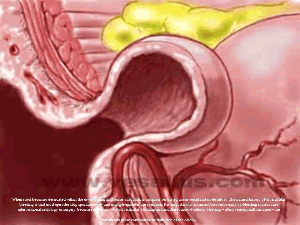 When stool becomes dessicated within the diverticulum and forms a fecolith, it can press on the adjacent vessel and erode into it. The natural history
