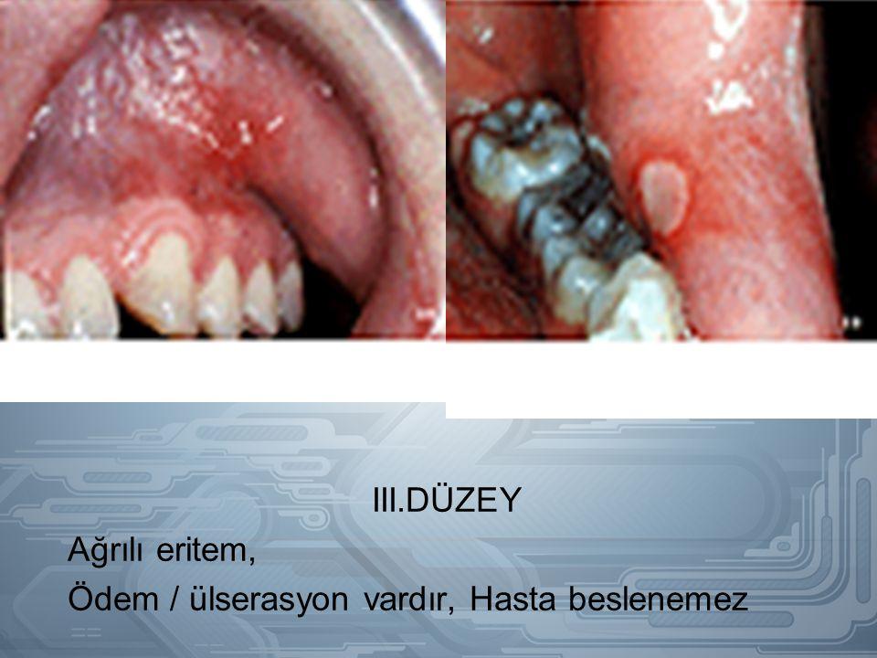 III.DÜZEY Ağrılı eritem, Ödem / ülserasyon vardır, Hasta beslenemez