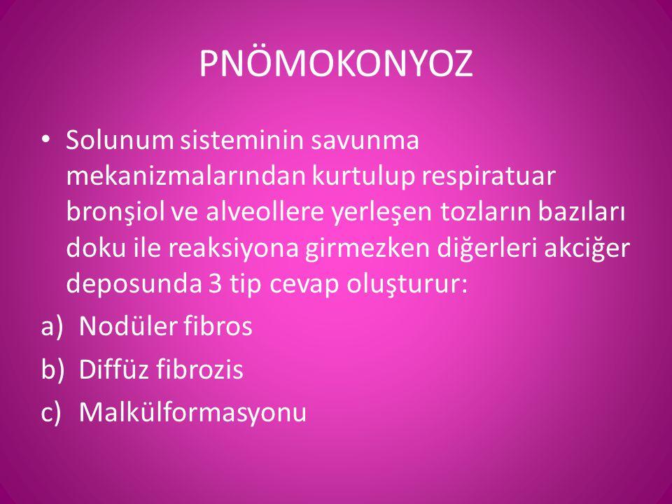 PNÖMOKONYOZ • Solunum sisteminin savunma mekanizmalarından kurtulup respiratuar bronşiol ve alveollere yerleşen tozların bazıları doku ile reaksiyona