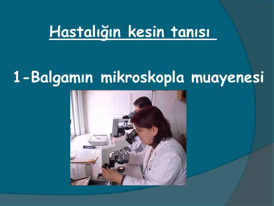 1-Balgamın mikroskopla muayenesi Hastalığın kesin tanısı