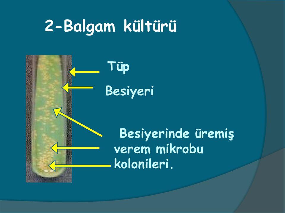 2-Balgam kültürü Tüp Besiyerinde üremiş verem mikrobu kolonileri. Besiyeri