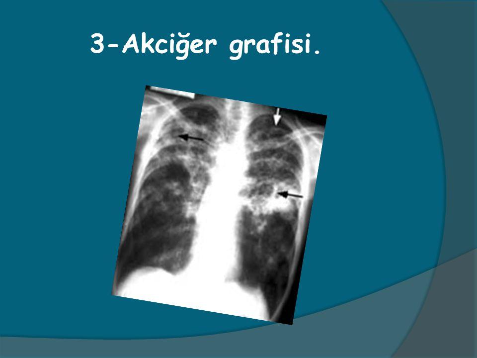 3-Akciğer grafisi.