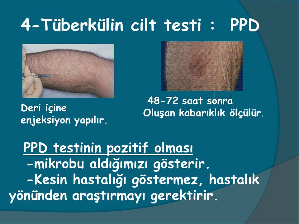 4-Tüberkülin cilt testi : PPD Deri içine enjeksiyon yapılır. 48-72 saat sonra Oluşan kabarıklık ölçülür. PPD testinin pozitif olması -mikrobu aldığımı