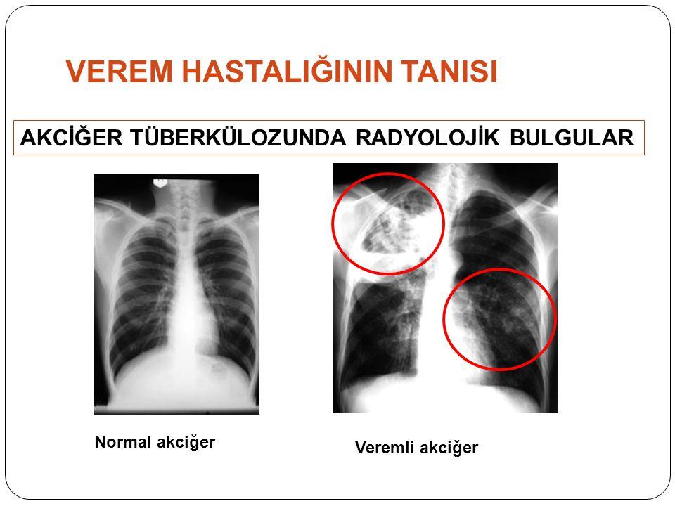 AKCİĞER TÜBERKÜLOZUNDA RADYOLOJİK BULGULAR Normal akciğer Veremli akciğer VEREM HASTALIĞININ TANISI