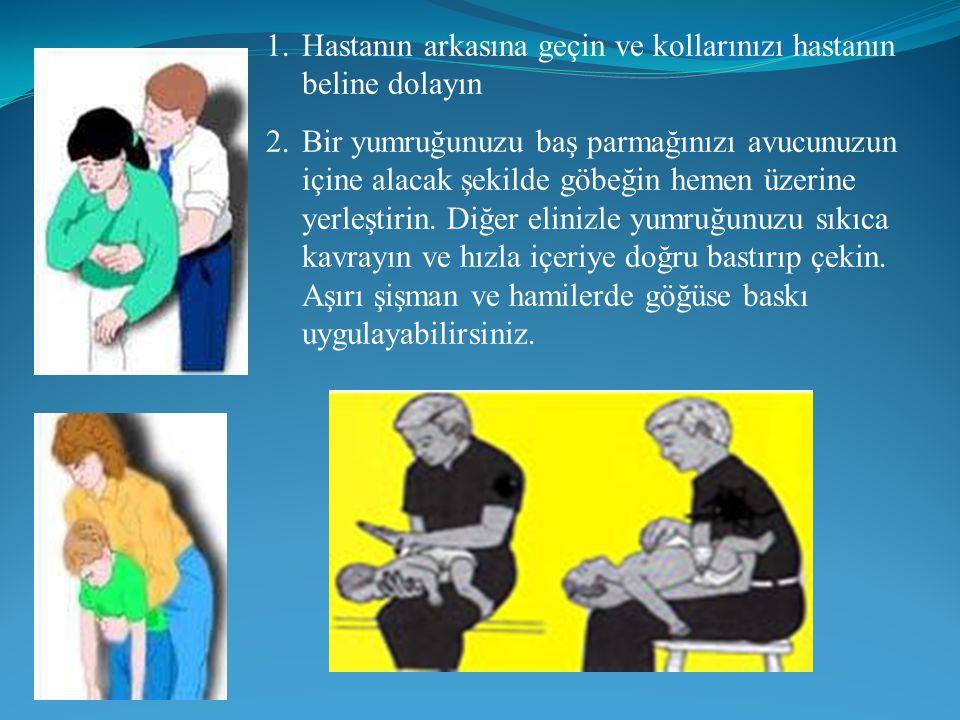 1.Hastanın arkasına geçin ve kollarınızı hastanın beline dolayın 2.Bir yumruğunuzu baş parmağınızı avucunuzun içine alacak şekilde göbeğin hemen üzerine yerleştirin.