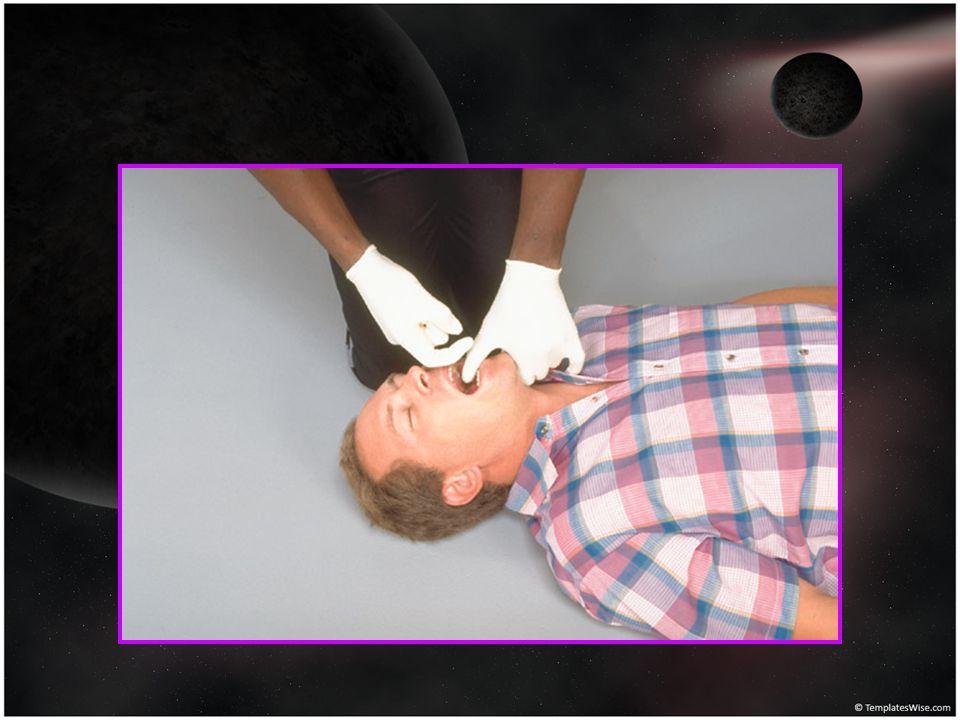 Hasta / yaralının hava yolu açıldıktan sonra, solunum Bak-Dinle-Hisset yöntemi Solunum yoksa tıbbi yardım istenir (112),