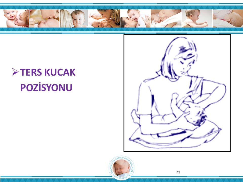  TERS KUCAK POZİSYONU 41