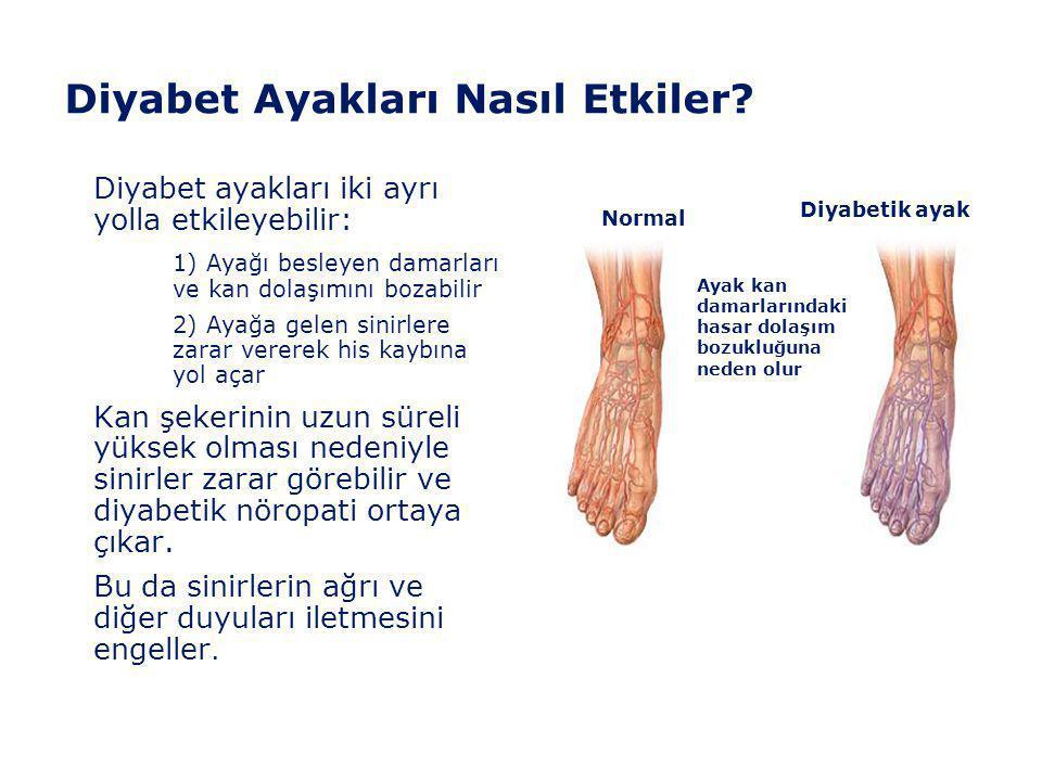 """""""Önlemek İyileştirmekten Daha Kolaydır"""" • Ayak sorunlarına ait ilk belirtileri nasıl tanıyacağınızı öğrenin. • Öğrendiklerinizi her gün uygulayın. • A"""