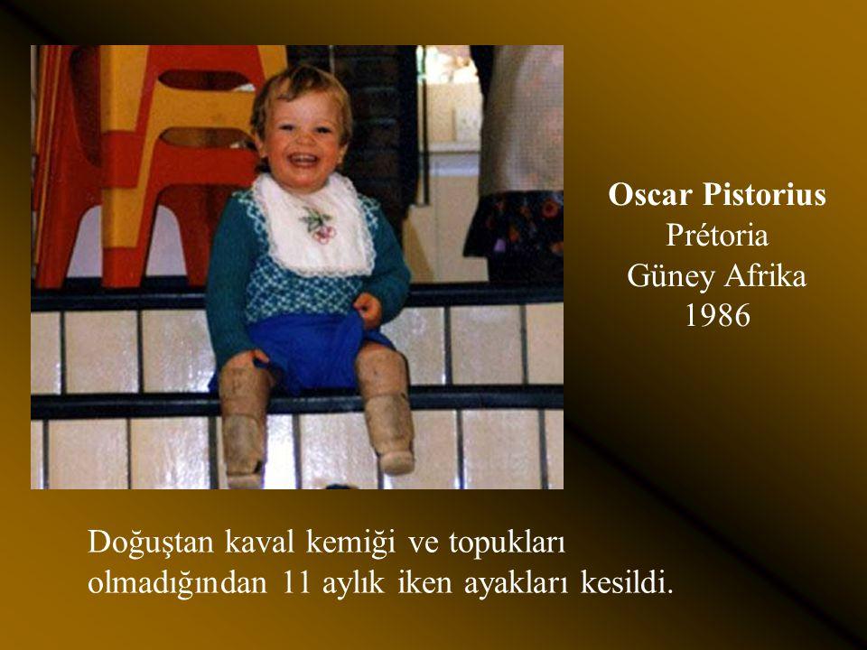 Oscar Pistorius Prétoria Güney Afrika 1986 Doğuştan kaval kemiği ve topukları olmadığından 11 aylık iken ayakları kesildi.