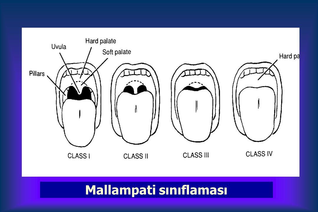 Mallampati sınıflaması