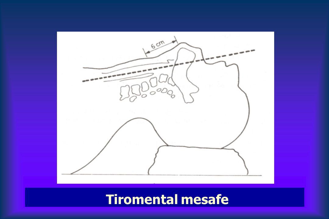 Tiromental mesafe