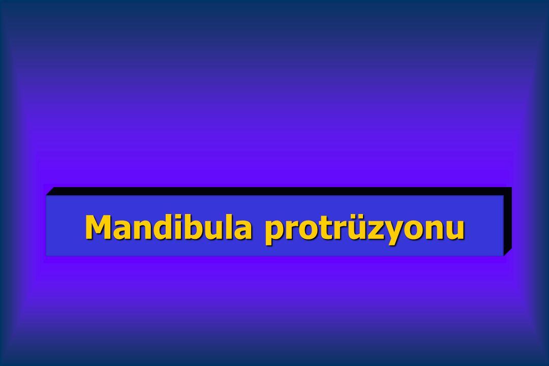 Mandibula protrüzyonu
