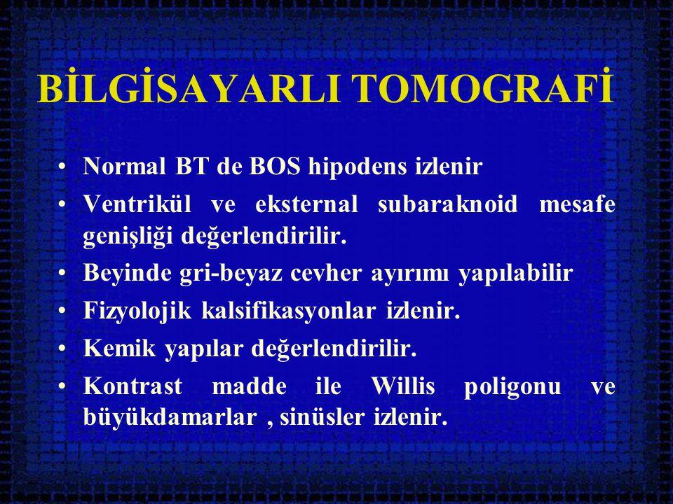 BİLGİSAYARLI TOMOGRAFİ •Normal BT de BOS hipodens izlenir •Ventrikül ve eksternal subaraknoid mesafe genişliği değerlendirilir. •Beyinde gri-beyaz cev