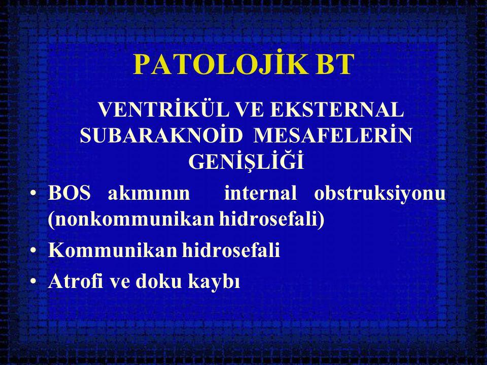 PATOLOJİK BT VENTRİKÜL VE EKSTERNAL SUBARAKNOİD MESAFELERİN GENİŞLİĞİ •BOS akımının internal obstruksiyonu (nonkommunikan hidrosefali) •Kommunikan hid