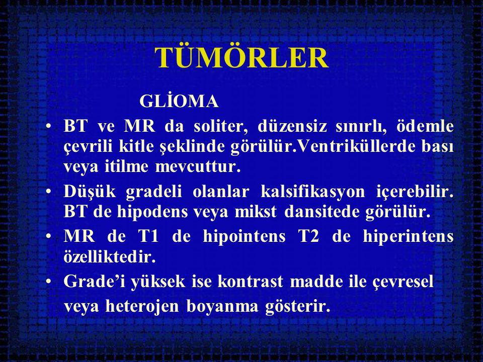TÜMÖRLER GLİOMA •BT ve MR da soliter, düzensiz sınırlı, ödemle çevrili kitle şeklinde görülür.Ventriküllerde bası veya itilme mevcuttur. •Düşük gradel