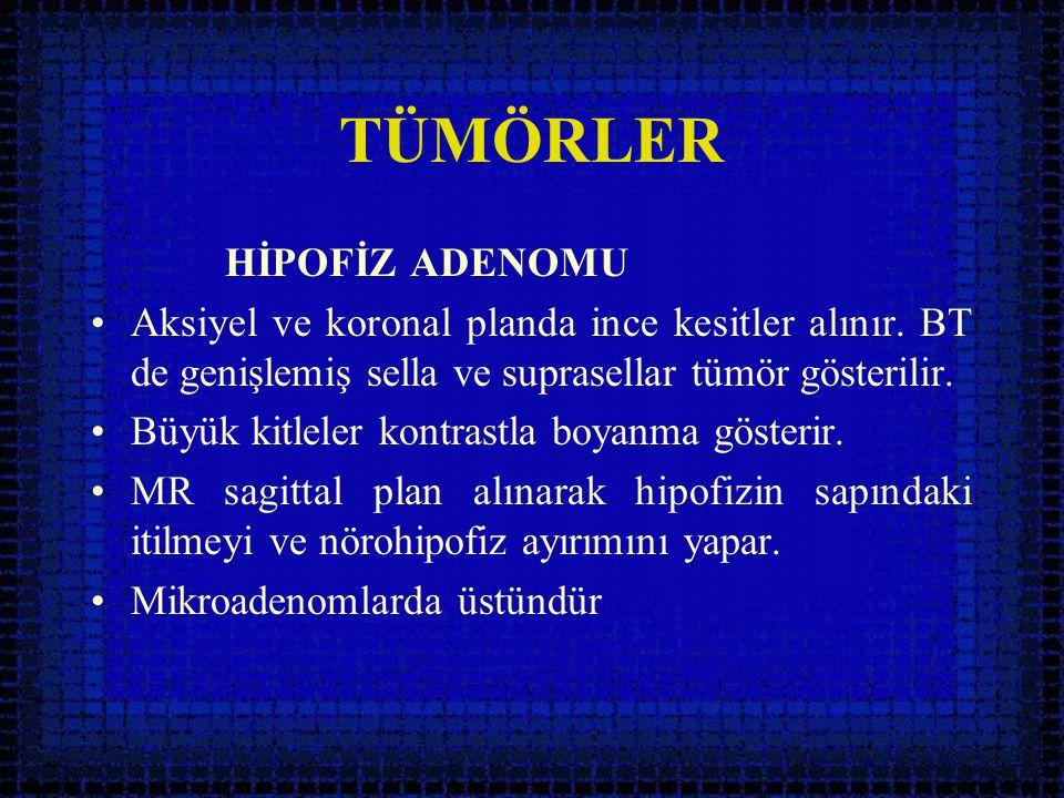 TÜMÖRLER HİPOFİZ ADENOMU •Aksiyel ve koronal planda ince kesitler alınır. BT de genişlemiş sella ve suprasellar tümör gösterilir. •Büyük kitleler kont