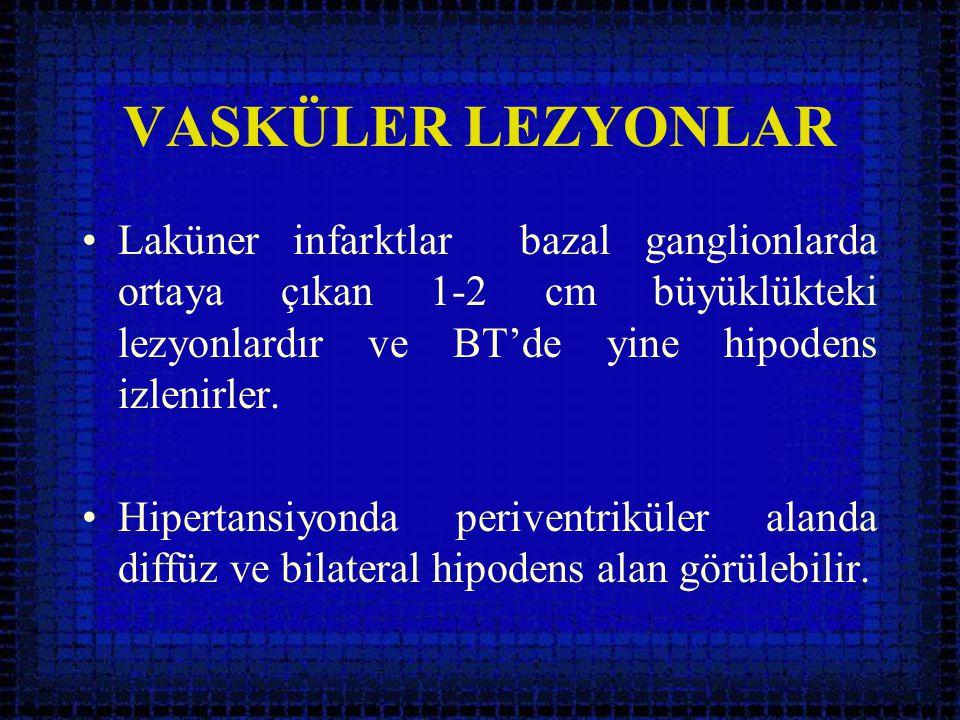 VASKÜLER LEZYONLAR •Laküner infarktlar bazal ganglionlarda ortaya çıkan 1-2 cm büyüklükteki lezyonlardır ve BT'de yine hipodens izlenirler. •Hipertans